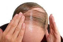Calvicie-hair-loss